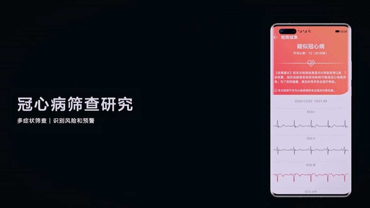 O primeiro smartwatch Huawei com recurso de medição de pressão arterial será lançado no segundo semestre deste ano 4